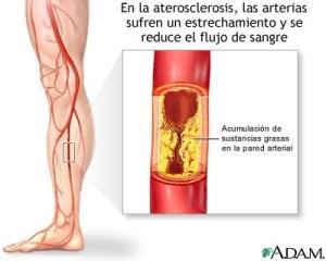 arteriosclerosis mar3.jpg